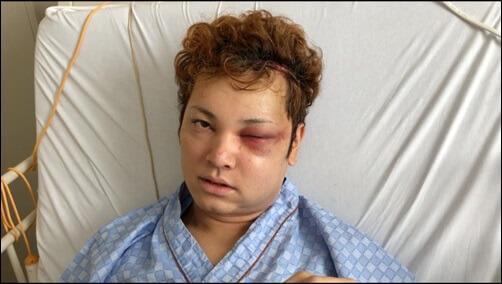 間瀬翔太、手術後、顔面崩壊